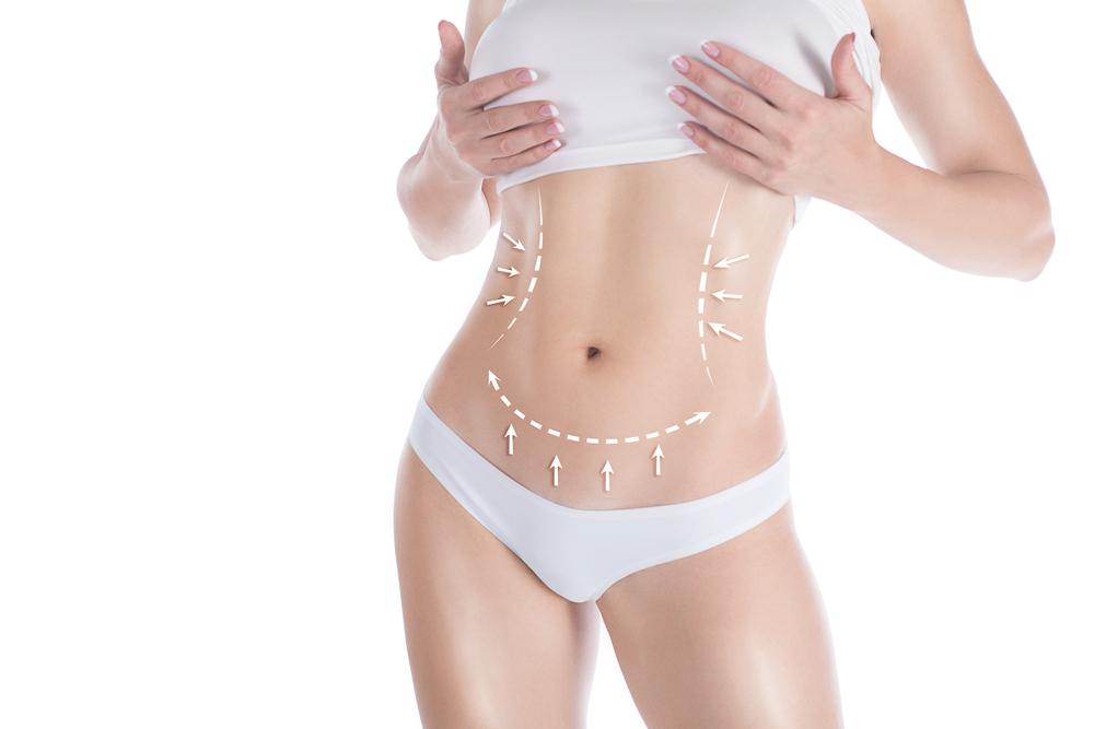 عملية نحت الجسم بالليزر ميديكالي كلينيك